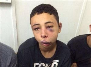15-year-old Tarek Abu Khdeir after being beaten by Israeli police