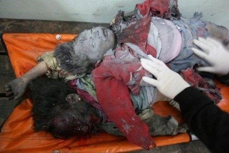 2 Palestinian child victims - 1 by DIME 1 by white phosphorous