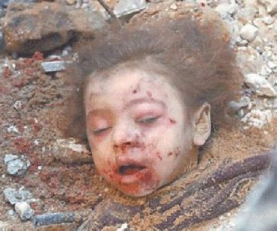 4 year old Gazan child's head