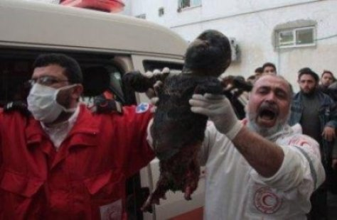 Baby girl burned to crisp and legs blown off by white phosphor