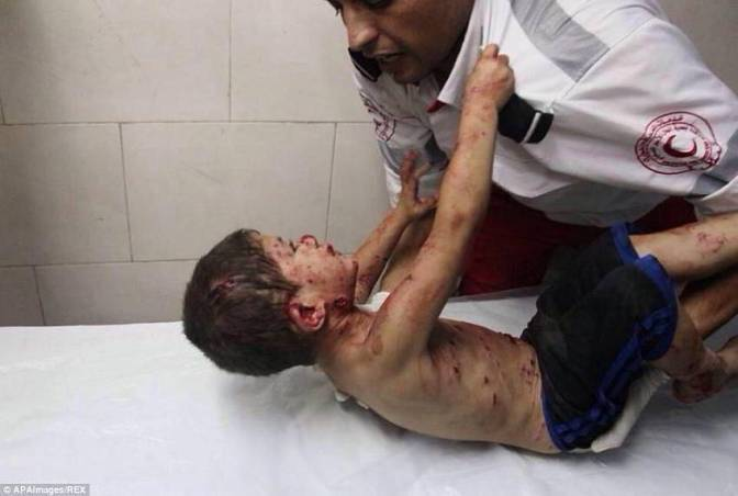 "Gaza - 18 July ""Please doctor save me!"" The boy had shrapnel in his neck"