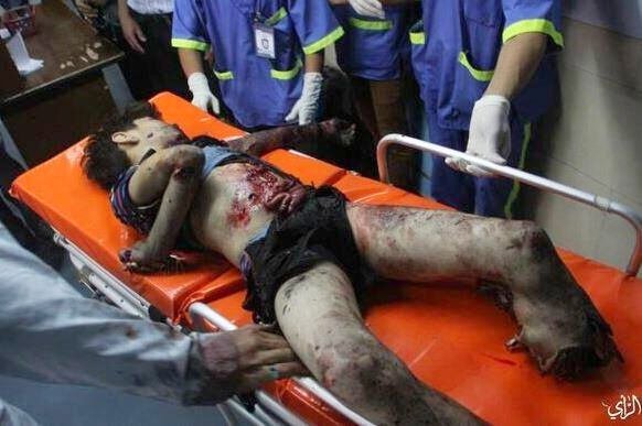 Gaza - another boy victim of DIME weapon from Jewish military