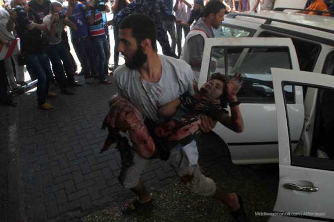 Gaza - father brings injured son to hospital victim of Jewish military attack 2014 MEMO/APA images
