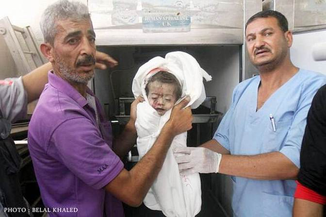 Gaza infant slaughtered by Jews 2014. Photo: Belal Khaled