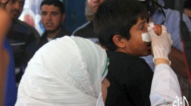 Gazan boy injured by Jewish military 2014