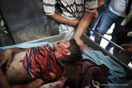 Gazan boy murdered by Jewish military 2014. APA images