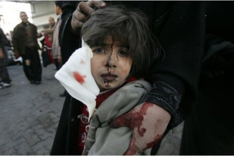 Little girl outside Shifa hospital after Jewish strikes on her town