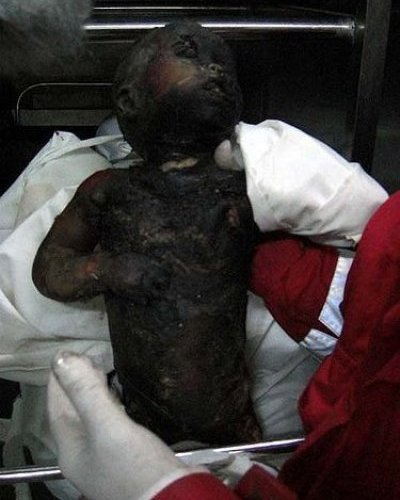 Palestinian baby girl burned to death by Israel's white phosphor