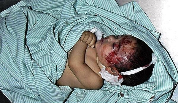 Palestinian baby shot in head by Jewish soldiers