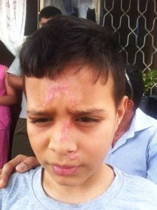 Palestinian boy attacked by violent Jewish settler colonists escaped kidnapping attempt. ISM