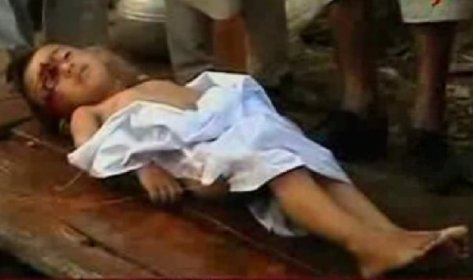 Palestinian child shot in the face by Jewish soldiers