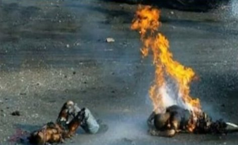 Palestinian children burning to death by Israel's white phosphorous