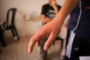 Palestinian child's hand: injured by violent Jews