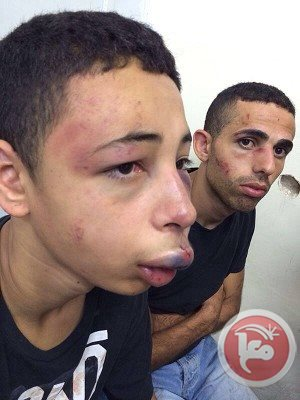 Tarek abu Khdeir brutalized by Jews