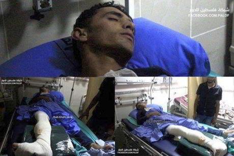 Tareq Ziad Odeily in hospital. Facebook/Paldf