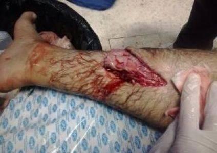 Tareq Ziad Odeily: hatchet wound on arm. Facebook/Paldf