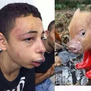 Tariq, beaten, next to a pig comparison